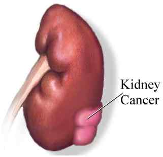 Kidney Cancer Vaccine Promising