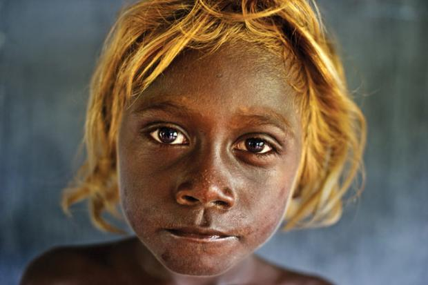 Mysterious origin of Solomon Islands� dark-skinned blonds revealed