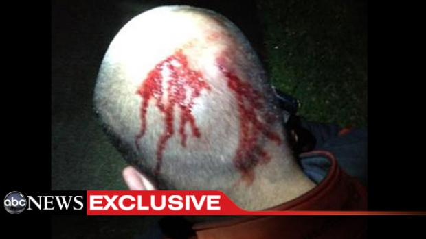 "Witness Told Cops He Saw Trayvon Martin Straddling George Zimmerman And Punching Him ""MMA Style"