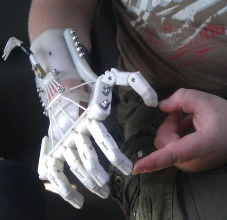 3D-printed Robohands help kids without fingers