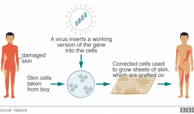 Regeneration of the entire human skin using transgenic stem